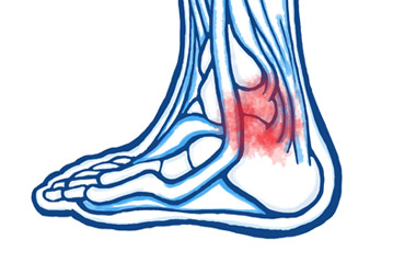 Tendon Problems in the Ankle Joint