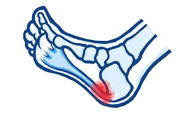 Common Causes of Heel Pain; Plantar Fasciitis & Heel Spurs