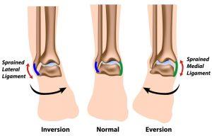 Inversion-Eversion-Ankle-Sprain-e1438692742669