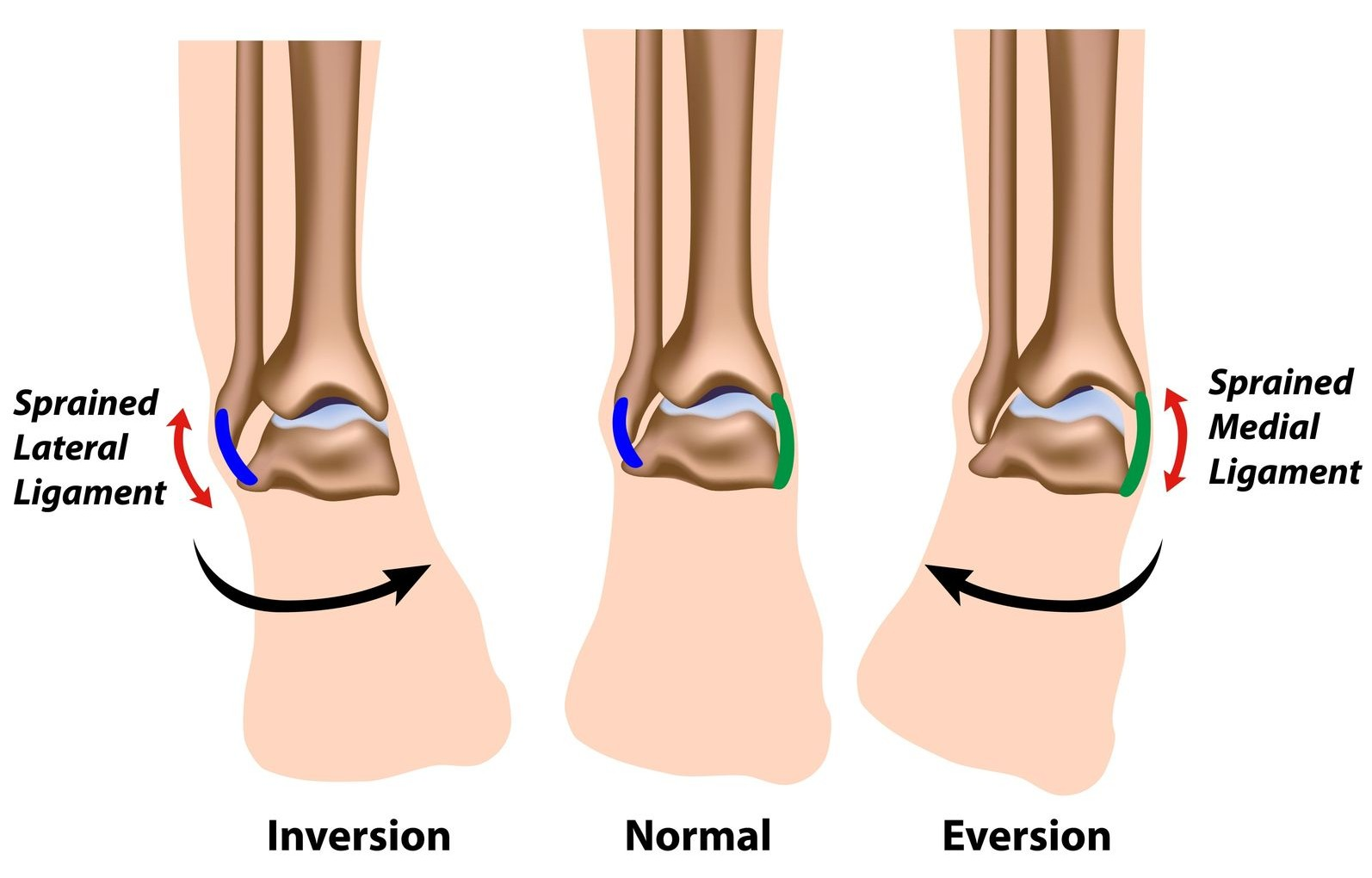 Ankle Strains Top Ten Sporting Injuries