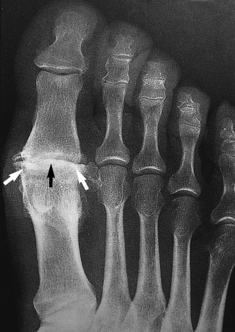 OA FOOT