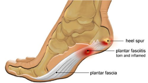Plantar Fasciitis and Heels spurs can be very hard to treat using manual based therapies…Shockwave Therapy could  provide a solution!!