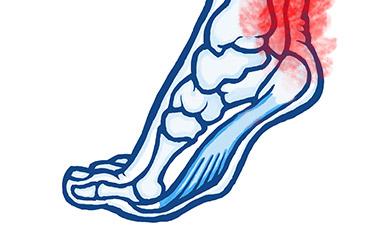 9 - Achilles Tendinopathy
