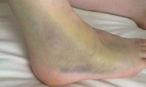 ankle sprains-and-strains