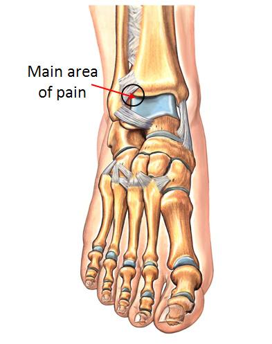 anterior ankle
