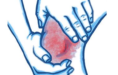 1 - Knee Pain