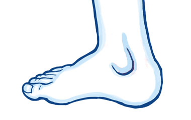 Other Causes of Ankle Pain
