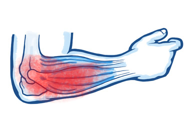 5 - Muscle Strain