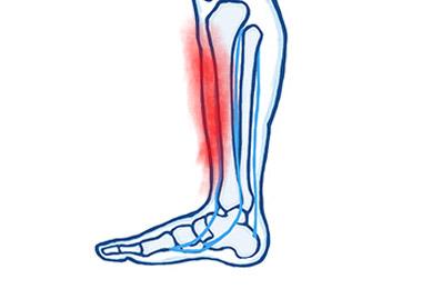 Pain in the Shin Bone (Shin Splints)
