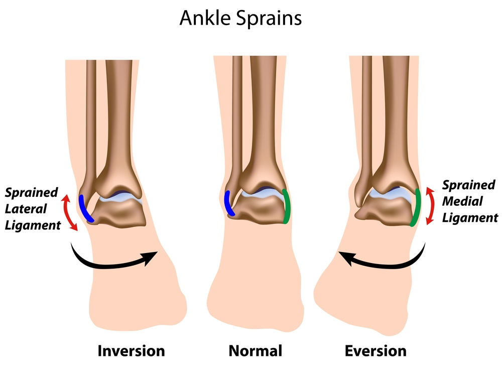 Ankle strains are one the most common injuries we see in clinic. Typically people turn their ankle over and we call this an inversion injury.