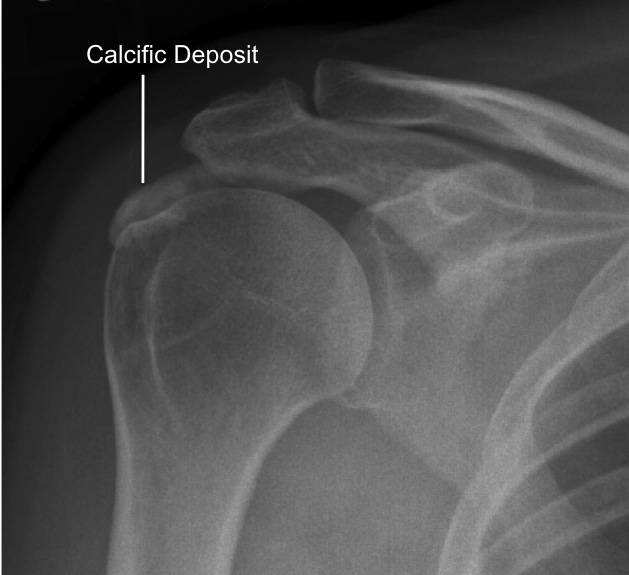 Calcific Deposit labelled
