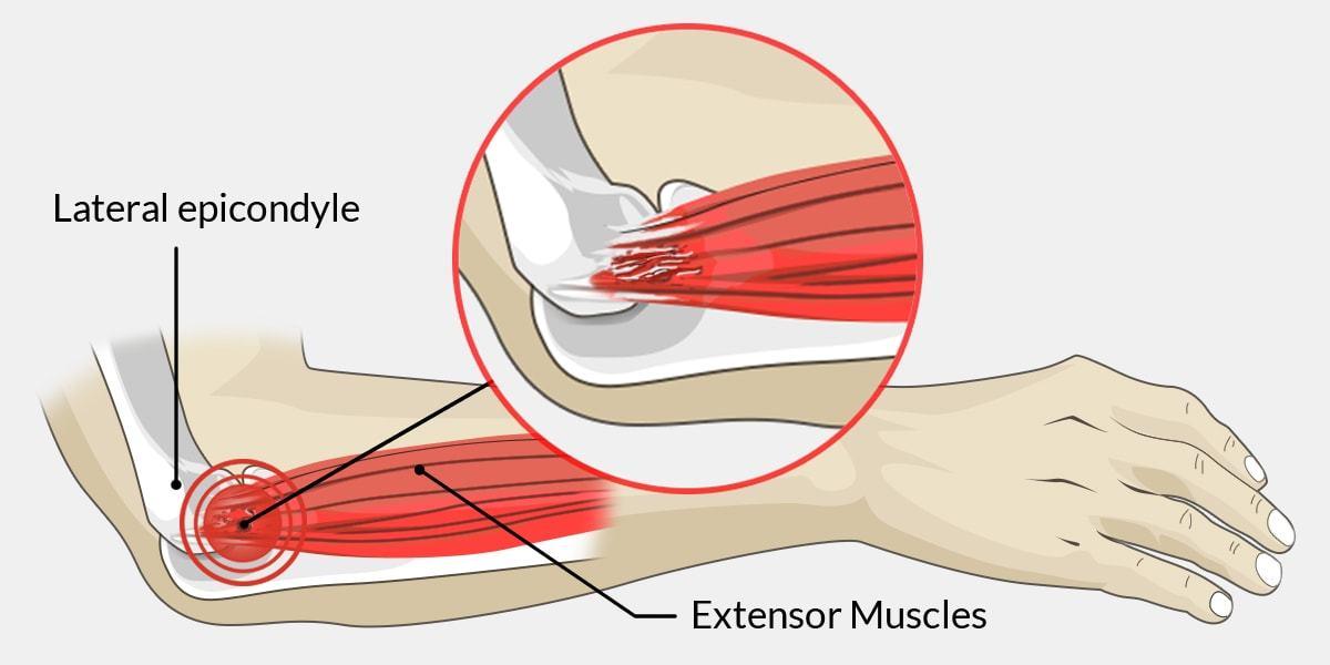 Tennis Or Golfer\'s Elbow | Top Ten Sporting Injuries