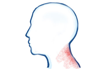 Osteoarthritis in the Neck