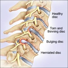 bulge cervical-spine-side-view