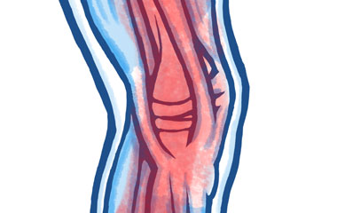 Common Ligament Problems in the Knee