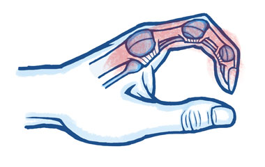 Common Tendon Injuries of the Hand