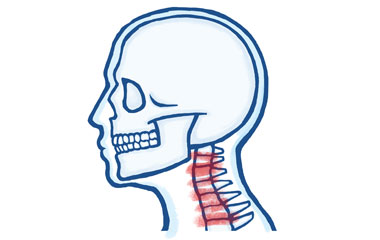 Joint Pain in the Neck