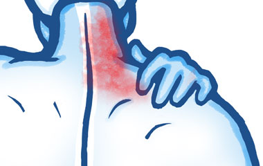 Soft Tissue Pain in the Neck