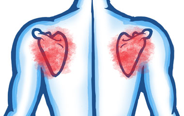 Muscle Problems in the Shoulder Joint