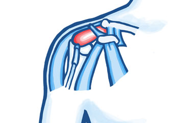 Tendon Problems in the Shoulder Joint