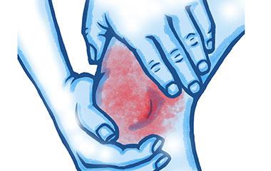 Common Kneecap (or Patella) issues
