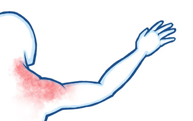 Referred Pain in the Shoulder Joint