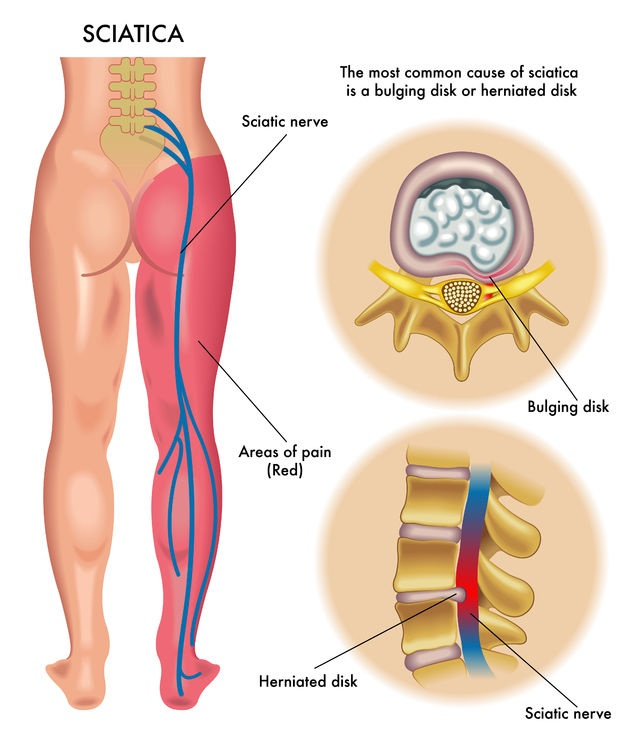 Trapped Nerves In The Lower Back