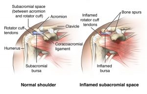 Anterior view of shoulder comparing normal subacromial space and bursa vs. inflamed bursa and compressed acromial space; AMuscsk_20140307_v0_004; SOURCE: ortho_subac-decomp_anat.ai