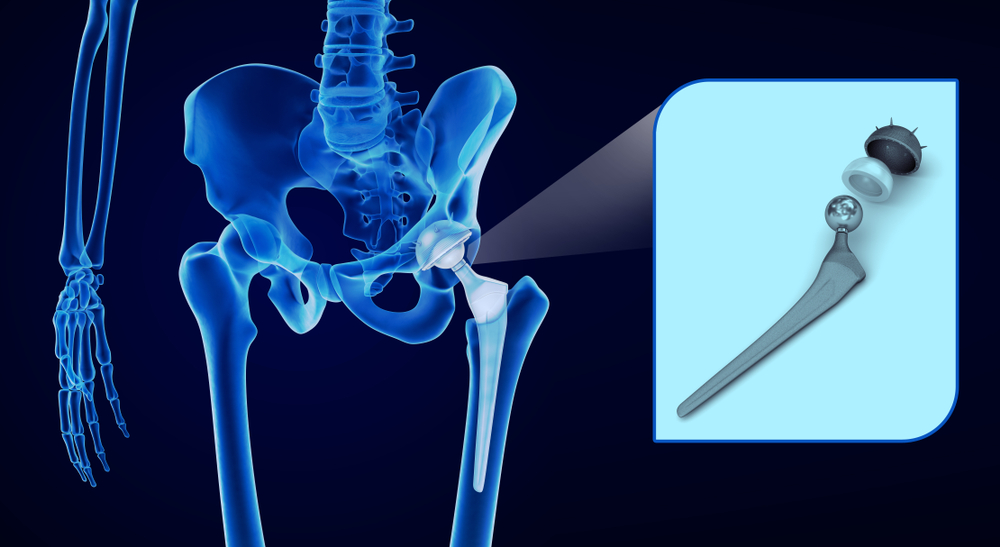 Osteoarthritis In The Hip Joint The Buxton Osteopathy Clinic