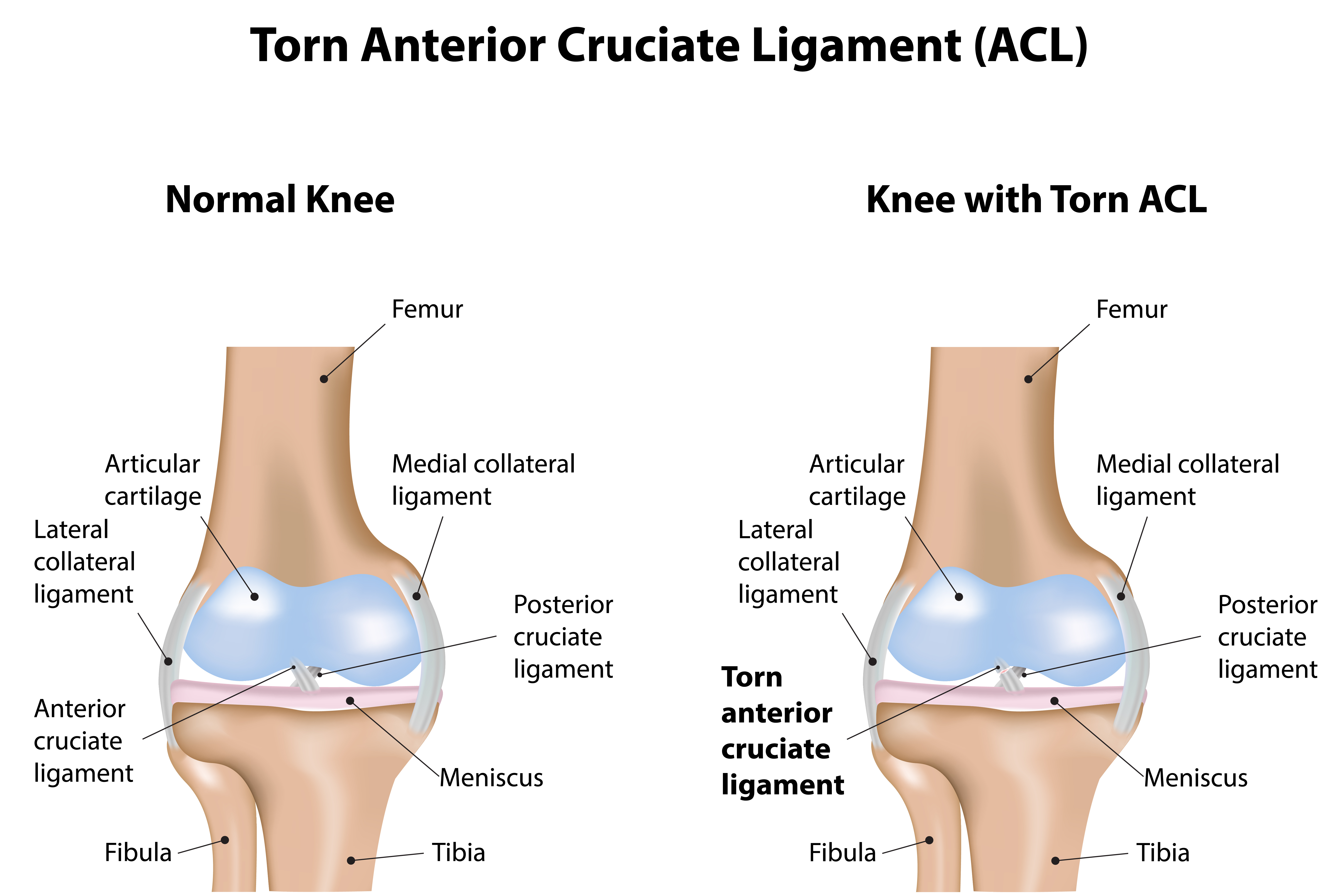 1 Knee Pain The Buxton Osteopathy Clinic