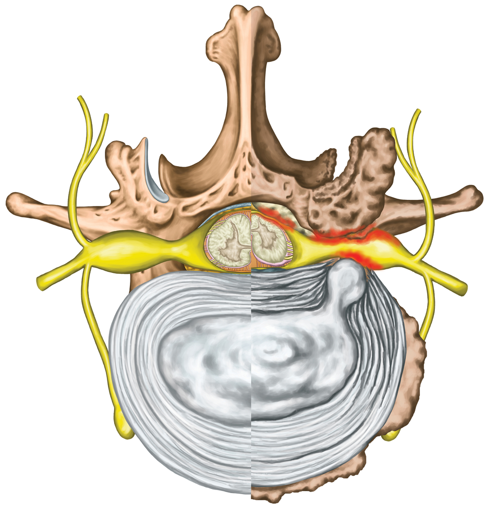 Trapped Nerves in the Neck - The Buxton Osteopathy Clinic