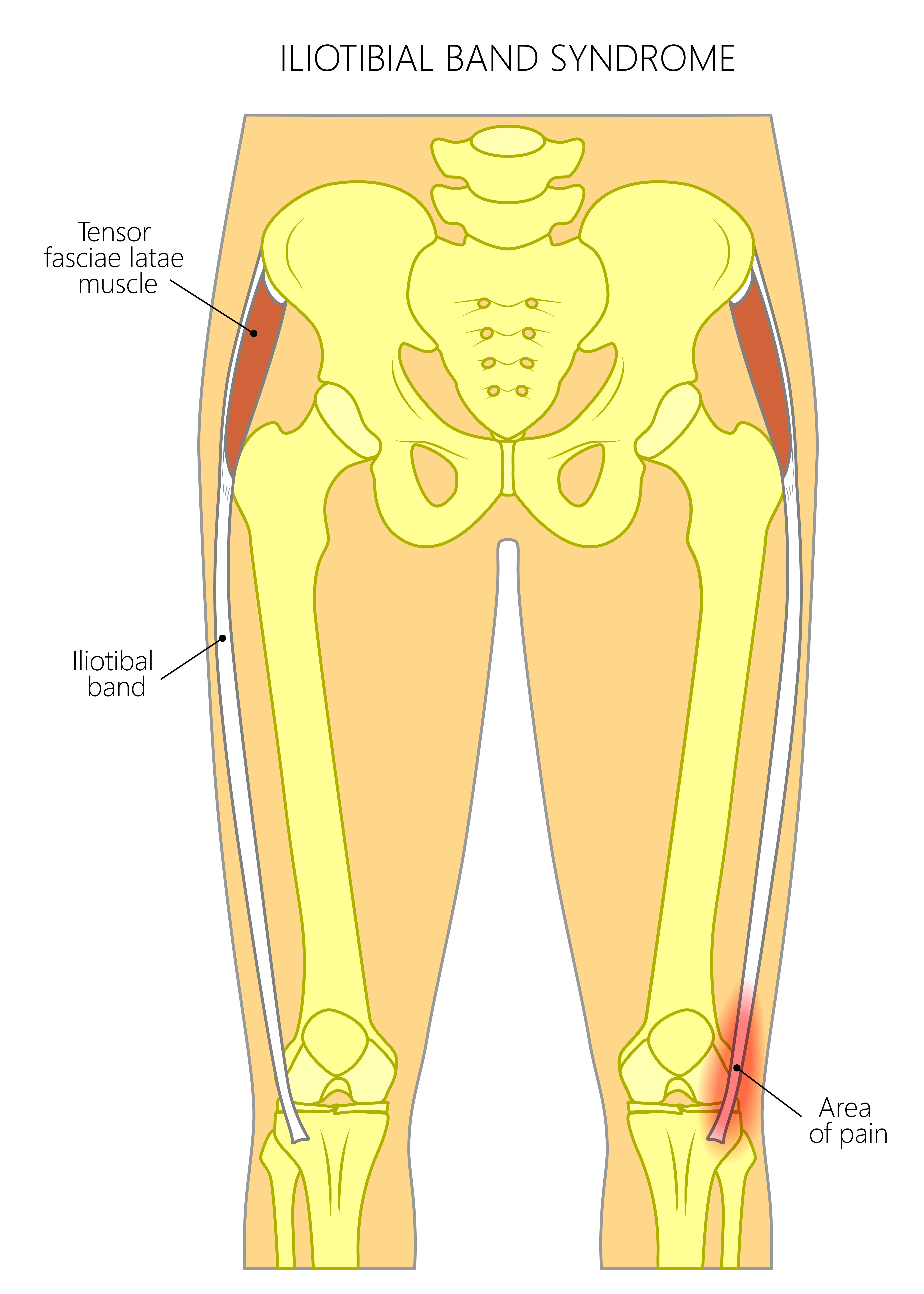 Common Muscle Strains Of The Hip Joint