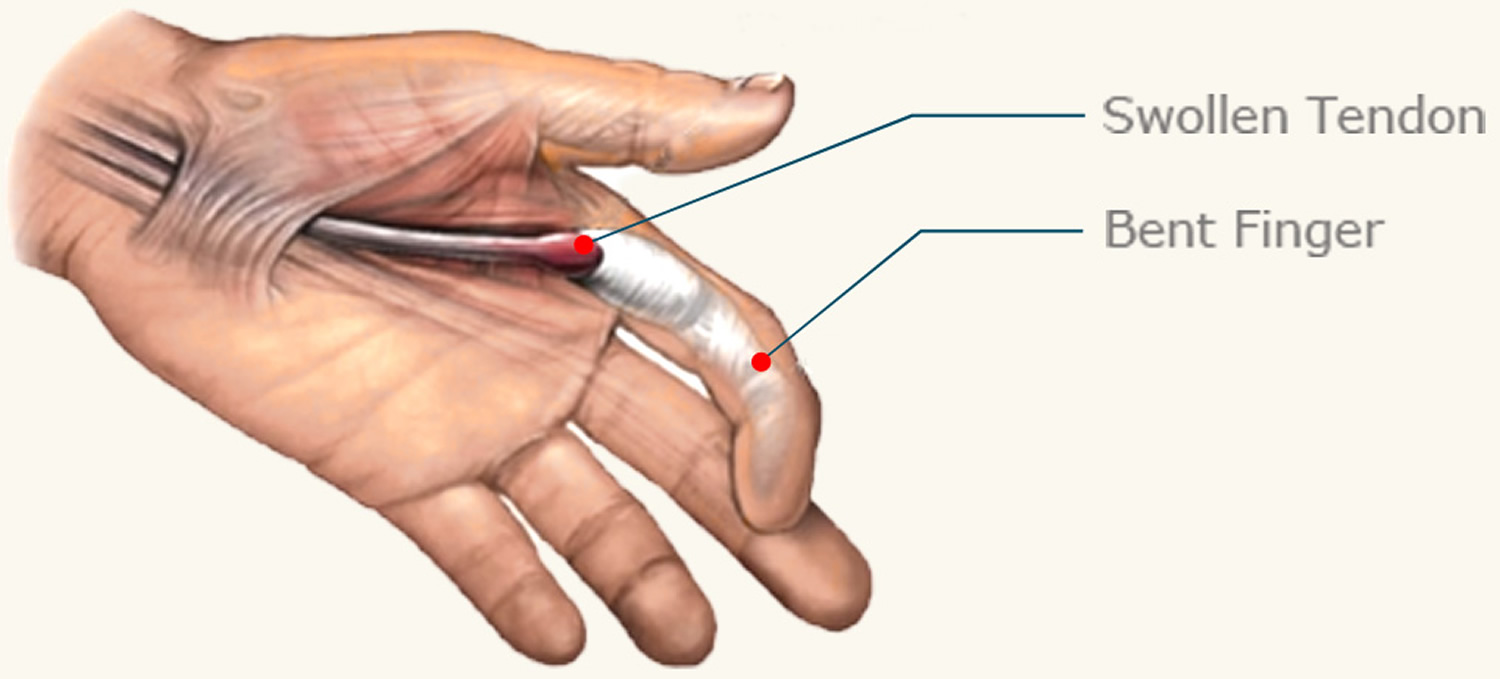Common Tendon And Soft Tissues In The Wrist And Hand