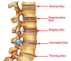 Difference-between-bulging-disc-and-herniated-disc-jpg