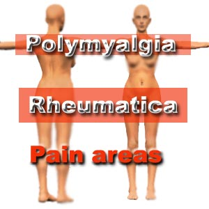 OVER 50? You should know about Polymyalgia Rheumatica (or PMR).