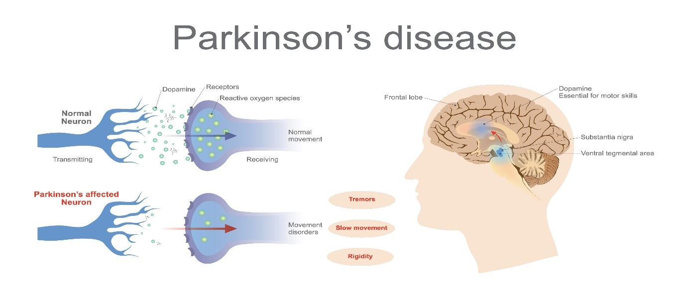 Parkinsons Disease & Latest Research Initiatives